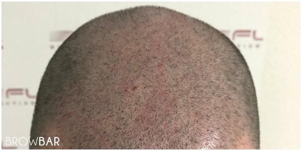 Scalp Micropigmentation in Karachi