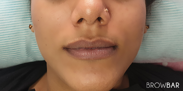 lip discoloration correction in karachi