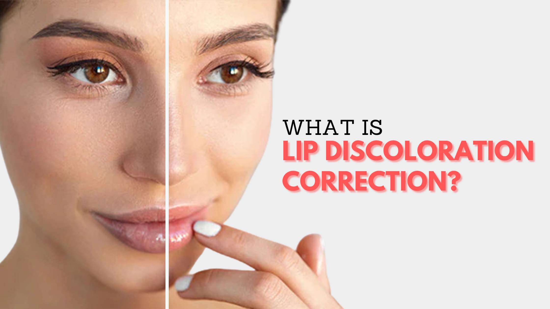 What is Lip Discoloration Correction?