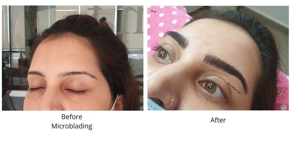 Microblading for Cancer Survivors