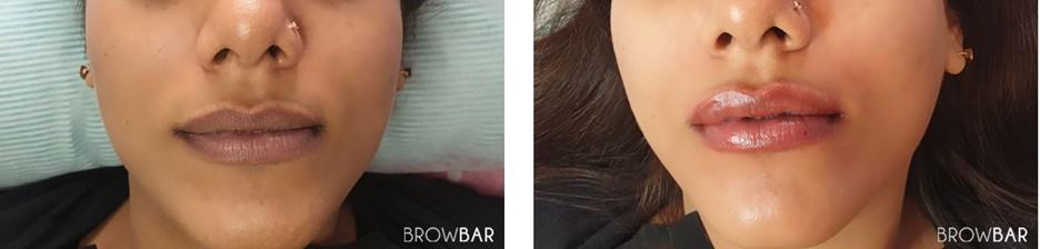lip discoloration correction