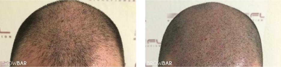 Scalp Micropigmentation Costs in Pakistan