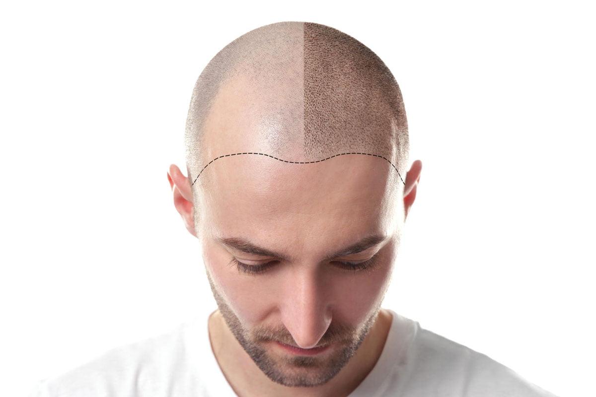 Scalp Micropigmentation vs Tattoo