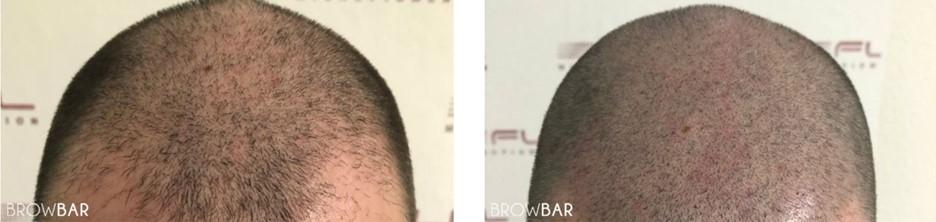 hair transplant vs scalp micropigmentation