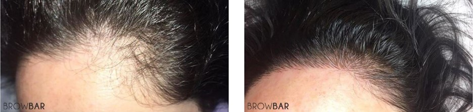What is Scalp Micropigmentation